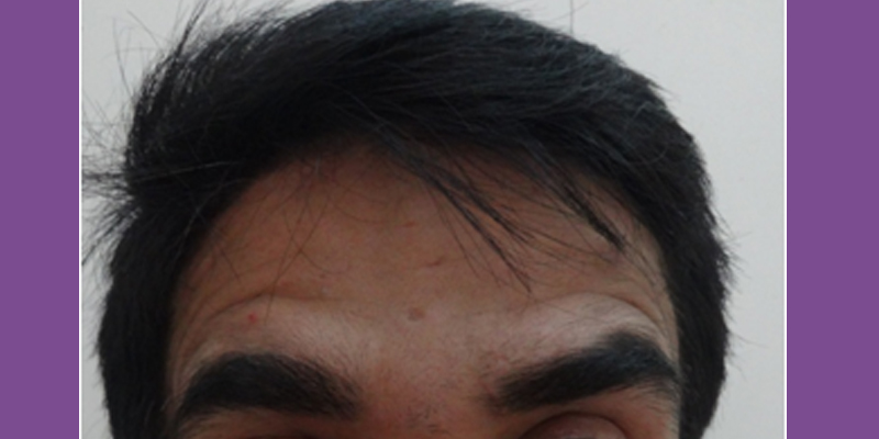 After-Forehead lines